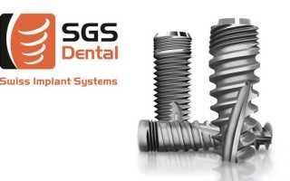 Импланты SGS – специальное предложение от швейцарских разработчиков