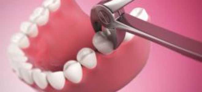Нормально ли это, если после удаления зуба кровяной сгусток не образовался?