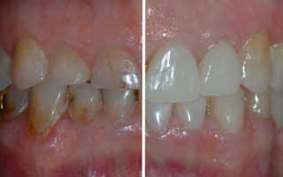 Основные причины стирания зубов и способы устранения проблемы