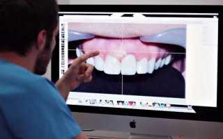 Современный подход к дизайну улыбки в эстетической стоматологии