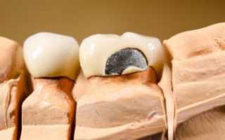 По какой цене можно вставить зубы из металлокерамики?