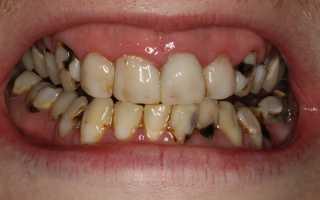 Популярные способы лечения кариеса зубов