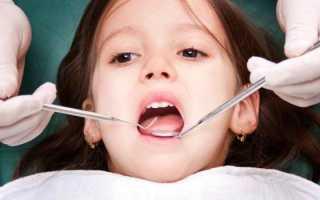 Это часто беспокоит родителей: почему появился стоматит у детей в 4 года, как лечить?