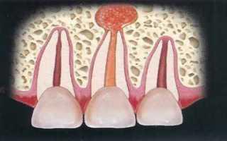 Это должен знать каждый, чтобы не потерять зубы: лечение хронического апикального периодонтита