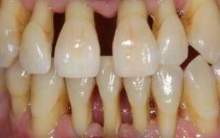 Как мазь от пародонтоза спасает зубы? Советы стоматологов