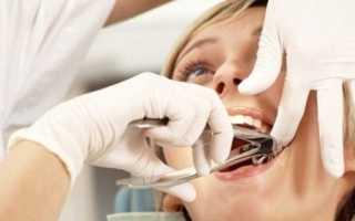 Основы применения турунды после удаления зуба