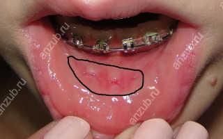 5 причин, по которым брекеты во рту натирают щёки. Что с этим делать?