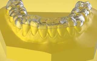 Задачи сплинт терапии в стоматологии и виды применяемых устройств