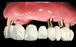 Комплексная имплантация зубов – быстро, качественно и надежно