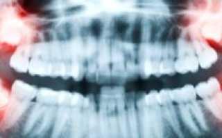 Как вылечить такую серьезную болезнь? Пульпит зуба мудрости и его симптомы
