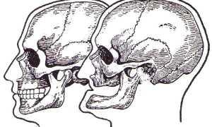 Как определить наличие старческой прогении и методы ее лечения