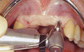 Специфика проведения эндоскопической имплантации зубов