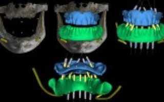 Преимущества внедрения 3d навигации при имплантации зубов