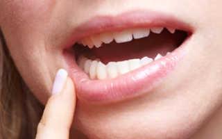 Афтозный стоматит: быстрое и эффективное лечение заболевания