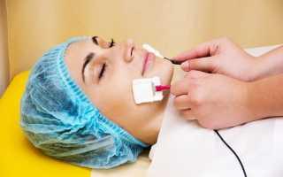 Целебные свойства электрофореза для зубов и принцип действия
