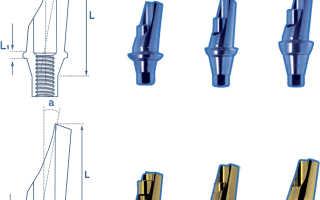 Улучшение эстетики протезирования за счет угловых абатментов