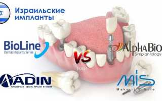 Секрет популярности израильских имплантов зубов