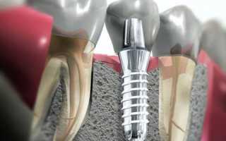 Суть экспресс имплантации зубов и всем ли подходит методика