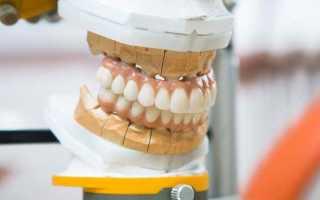 Какими способами производится ремонт зубного протеза