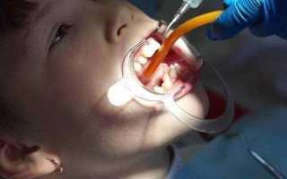 Подрезание уздечки под языком у детей: показания и этапы операции