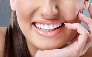 Виниры на зубы: факторы влияющие на цены