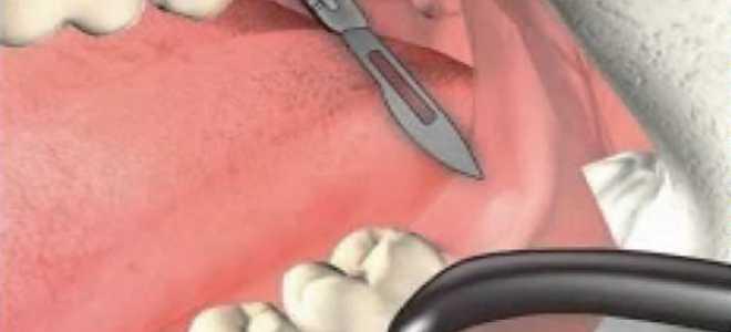 Мельчайшие подробности об удалении капюшона зуба мудрости