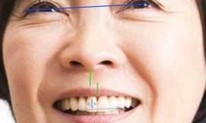 Лучший подход к исправлению смещения средней линии зубов