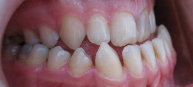 Чем опасно оральное положение зубов и как устранить дефект