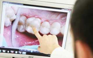 Инновационный способ реставрации зубов ультранирами