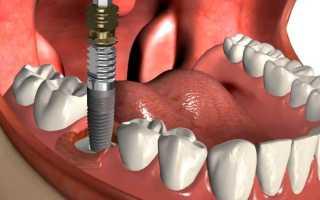 Выпадают импланты зубов – четыре причины и два пути решения проблемы