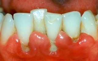 Нужно лечить, пока зубы не выпали! Лучшие препараты для лечения десен при пародонтите