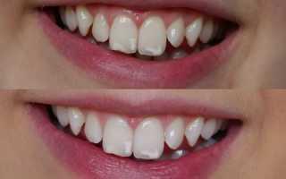 Как проявляется флюороз зубов? Фото и симптомы