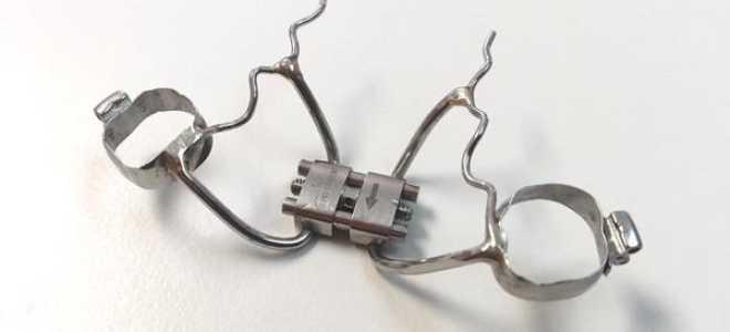 Алгоритм использования аппарата Бидермана при коррекции дефектов прикуса