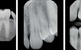 Патологии, определяемые с помощью прицельного снимка зуба