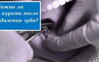 Вредно или нет: можно ли после удаления зуба курить и если да, то через сколько дней?