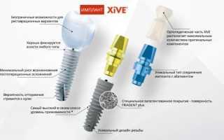 Каждый пациент должен знать это про импланты Xive