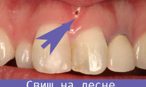 Как лечить свищ на десне дома, что делают в стоматологии?