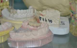 Протоколы принятия решения о сложном протезировании зубов