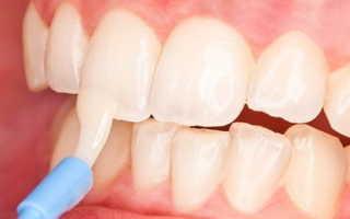 Как восстановить эмаль зубов: медицинские процедуры и препараты
