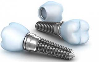 Импланты зубов: отзывы, вред, противопоказания, мифы