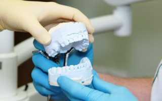 Длительность протезирования зубов или сколько уходит времени