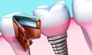 Сколько стоит поставить имплантат зуба, от чего зависит цена
