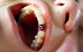 Импланты Ihde Dental для вживления без костной пластики