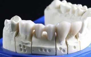 Сколько стоит вставить зуб: таблица цен по всем видам протезирования