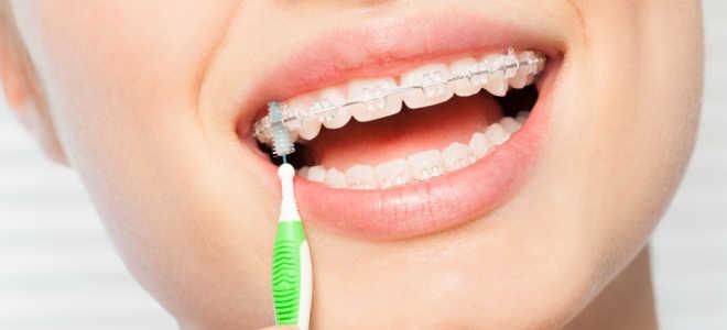 Керамические ортодонтические аппараты в Москве
