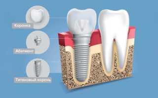 Задачи, решаемые с помощью индивидуального абатмента при имплантации зубов
