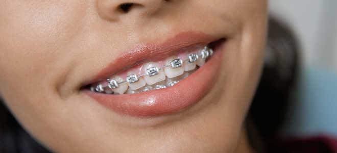 Что такое ортодонтический аппарат? Сколько стоит приобрести ортодонтический аппарат? Результаты до и после
