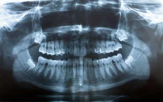 Панорамная съемка (OPTG) | Современные методы диагностики в стоматологических кабинетах »