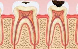 Фото каждой стадии кариеса зубов