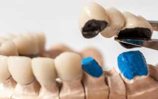 Какие зубы лучше вставлять: цены, виды, материалы